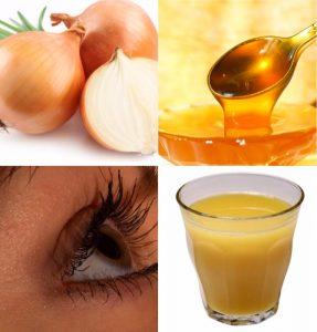 бельмо на глазу лечение медом